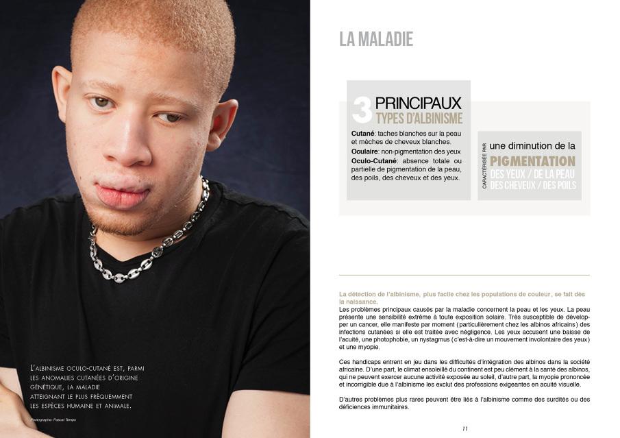 yeux humains albinos